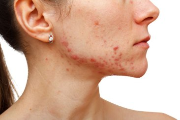 acne_prone-83bd447a617f9e846ed23b87752549326d51ac5be45fd6b6158fb37da60d8bb8
